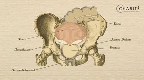 prostatakrebs laserbehandlung